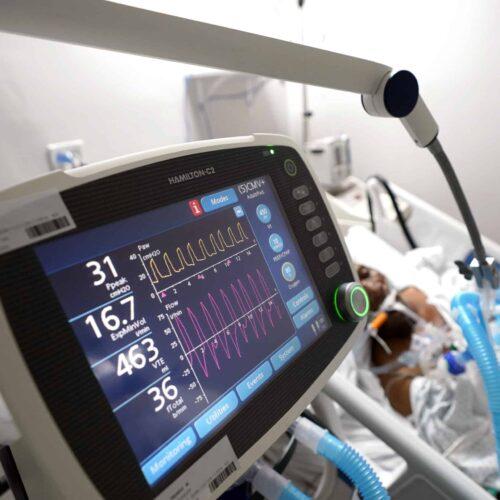 A COVID-19 patient on a ventilator